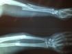 Las personas con diabetes tienen mayor riesgo de sufrir una fractura ósea (Bone)