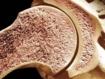 Dos de cada tres traumatólogos europeos creen que la osteoporosis es una enfermedad desatendida