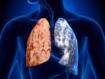 El desarrollo pulmonar puede explicar por qué algunos no fumadores contraen EPOC mientras fumadores empedernidos no lo hacen (JAMA)