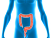 Colorectal cancer survival in patients with or without underlying inflammatory bowel disease
