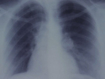 Only 35 per cent of lung cancer patients receive chest X-ray within recommended timeframe