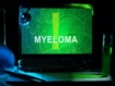 Is whole body MRI the best imaging modality to detect myeloma?