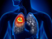 Efficacy of camrelizumab plus chemotherapy against non-squamous non-small-cell lung cancer