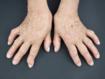 Safety and efficacy of neurostimulation for patients with multidrug-refractory rheumatoid arthritis