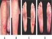 Progression of carotid intima-media thickness in SLE