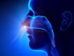 Cochrane review: intranasal corticosteroids for non-allergic rhinitis