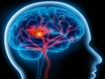 Effect of metformin on cognitive and neural recovery in survivors of paediatric brain tumours