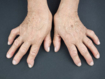 Biologics versus conventional treatment for early rheumatoid arthritis