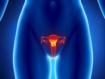 Prévention du cancer invasif du col de l'utérus : le vaccin anti-PVH est-il à la hauteur?