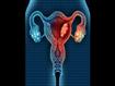 Probiotique pour prévenir les récidives de la vaginose bactérienne