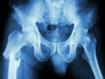 Abitudini alimentari e rischio di frattura dell'anca