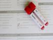 Las pruebas de infecciones de transmisión sexual en mujeres con poca frecuencia incluyen detección sistemática y prevención de infección por VIH