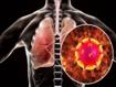 COVID-19: mejora clínica con remdesivir, pero no está clara la importancia