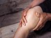 La obesidad no influye en el desenlace de la artroplastia unicompartimental de rodilla por artrosis