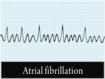 La calidad de vida es similar con digoxina que con bisoprolol en la fibrilación auricular