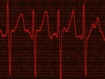 ESC 2020-EAST-AFNET 4: control temprano del ritmo cardiaco en la fibrilación auricular aumenta la sobrevida