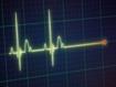 Mantener controlada la glucosa para prevenir la neuropatía autonómica cardiaca