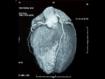 La tomografía computarizada cardiaca se puede utilizar para la detección sistemática de osteoporosis
