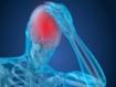 La conmoción cerebral se vincula con riesgo de demencia, enfermedad de Parkinson y trastorno por déficit de atención/hiperactividad
